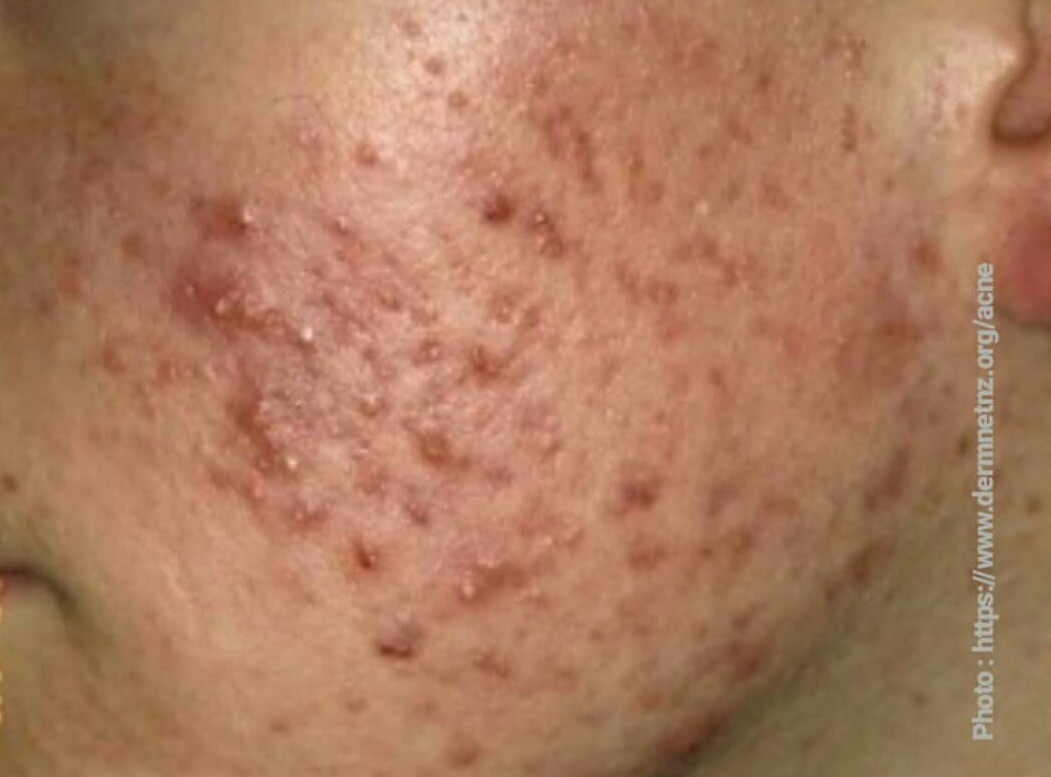 What you should know about acne in adolescent population?