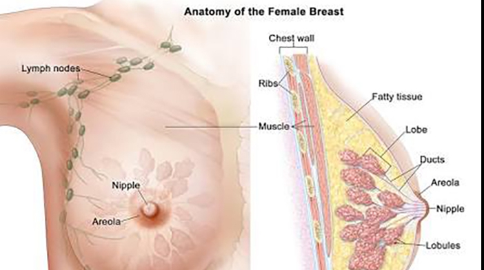 Breast Cancer for women